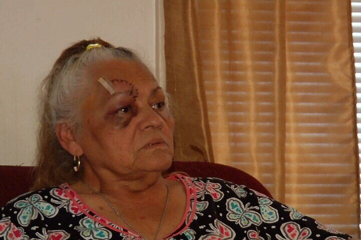 Velia Hernandez, 69, suffered serious injuries in a random attack that was caught on surveillance video Monday afternoon.