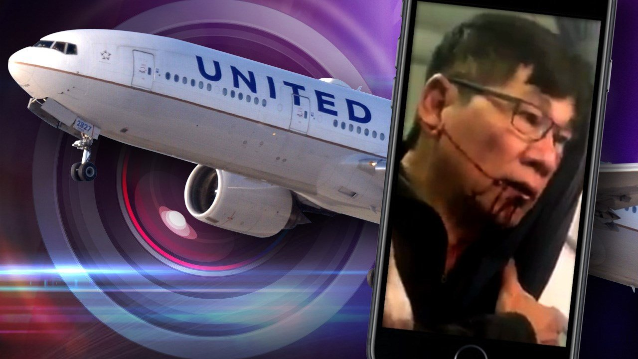A Kentucky doctor who was dragged from a United Airlines flight has settled with the company for an undisclosed amount. Photo: MGN