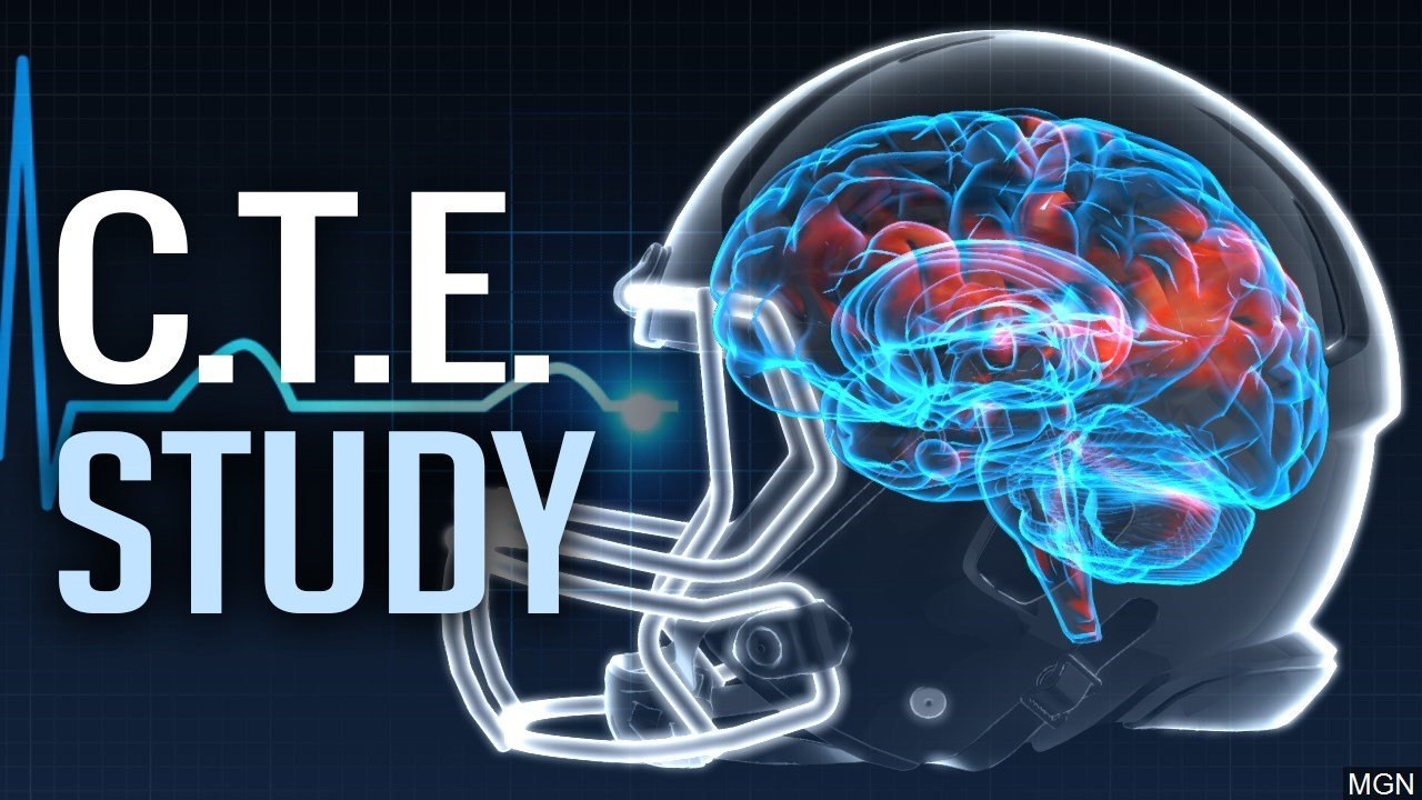 Brain Disease Found In Nearly All Deceased Football Players Involved In Study