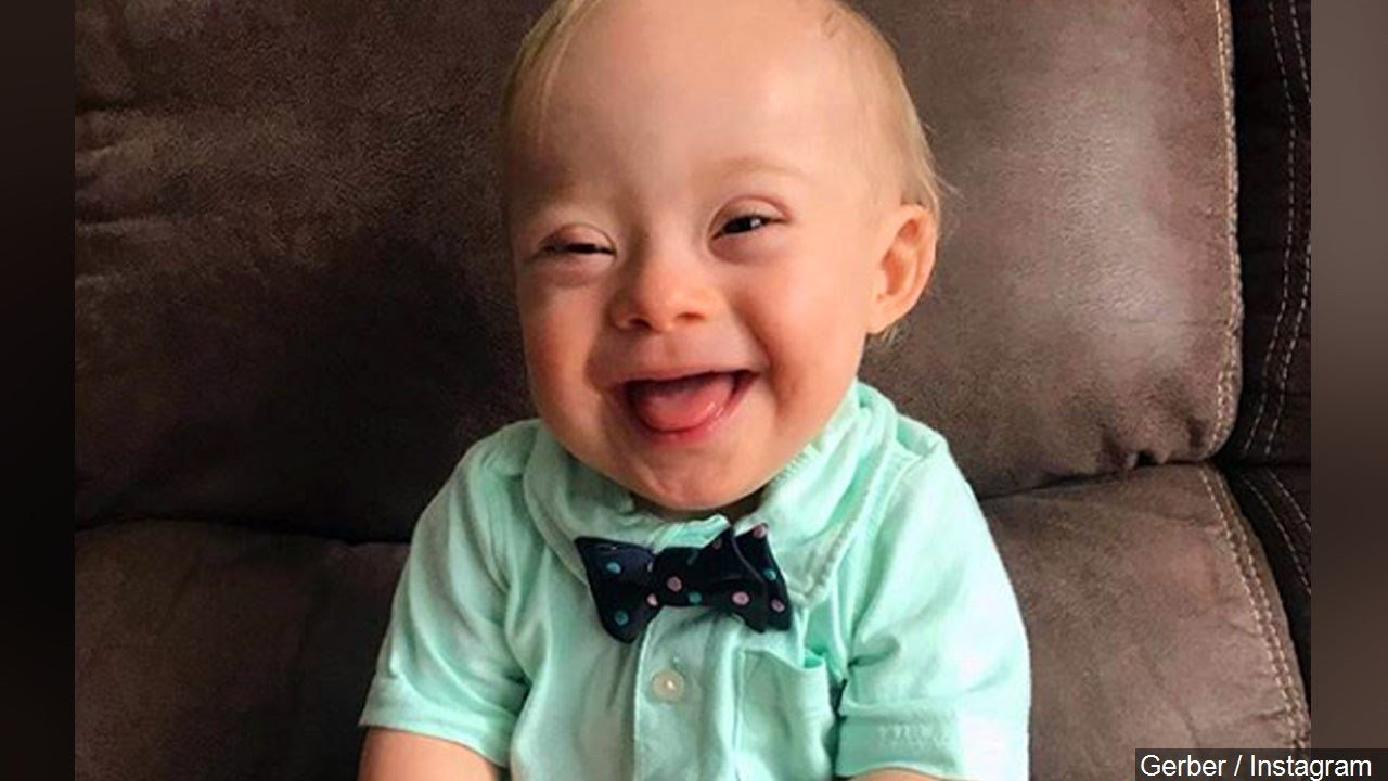 Meet Lucas, first Gerber baby with Down syndrome