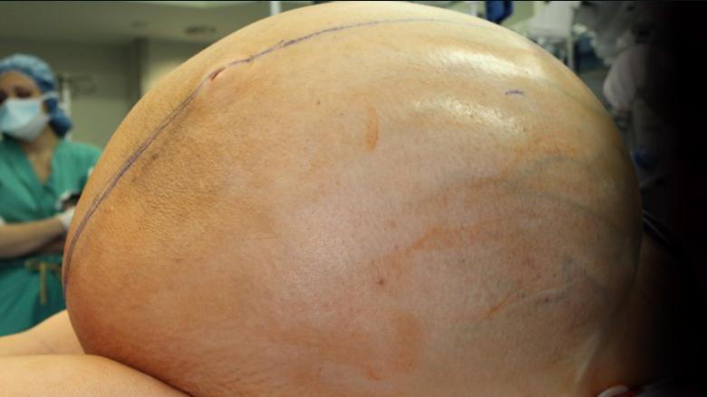 Danbury Hospital Surgeons Removed 132-Pound Ovarian Cyst