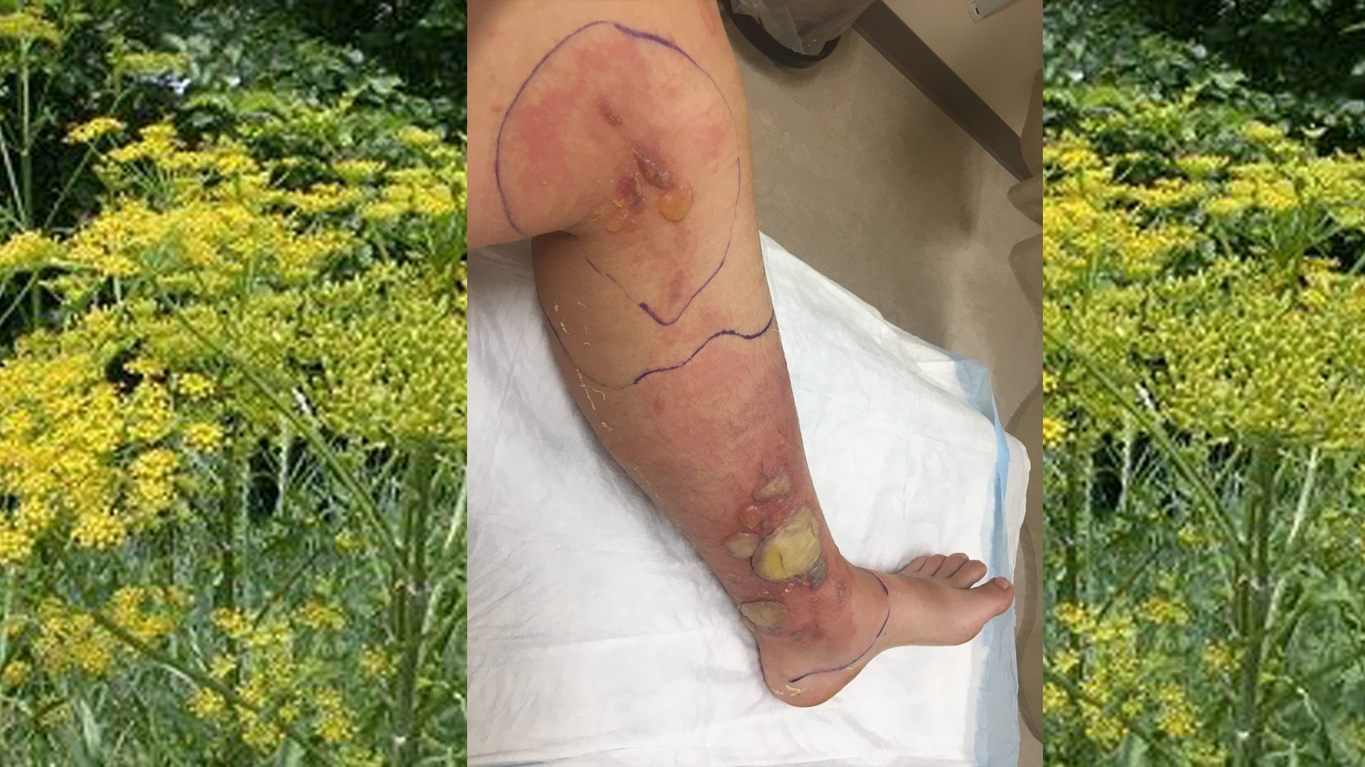 Invasive wild parsnip plant leaves New England woman with severe burns